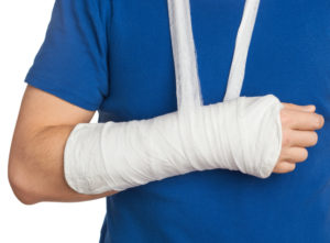Broken Bone Injury Californial